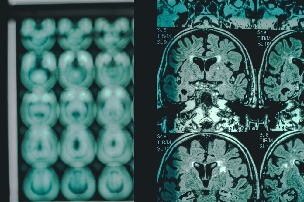AI Unravels Stealthy Illness Conundrum